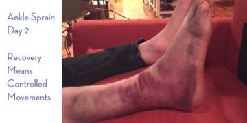 Massage Therapy for an Ankle Sprain: Advice for Runners