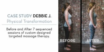 Massage Therapy for Diastasis Recti